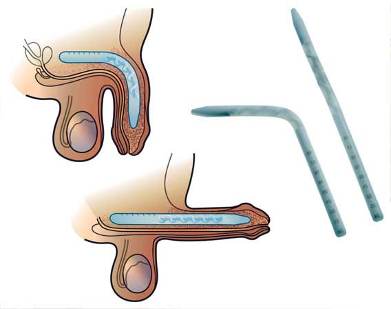 Coloplast Genesis – 1 piece Malleable Penile Implant India cost Surgery Hospital Mumbai, Chennai, Delhi, Kolkata, Hyderabad, Bangalore, Pune, Ahmedabad in India