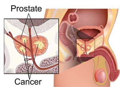ED diseases and conditions -  Cancer in prostate cancer and inflamed prostate management