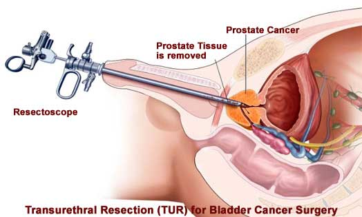 Transurethral Resection Of The Bladder Tumor Cost Treatment Surgery in Mumbai Chennai Delhi Kolkata Hyderabad Bangalore Pune Ahmedabad India